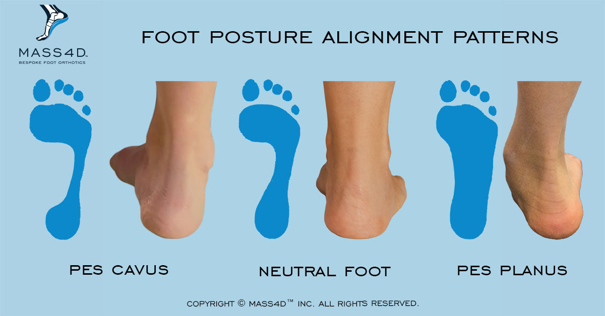 Foot Posture Alignment Patterns