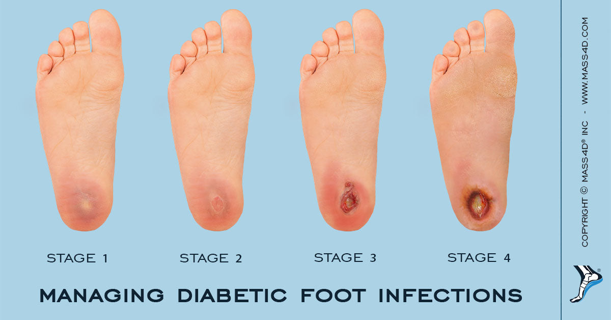 Managing Diabetic Foot Infections