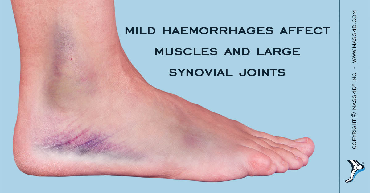 MASS4D® Orthotics In The Rehabilitation of Lower Limbs in ...