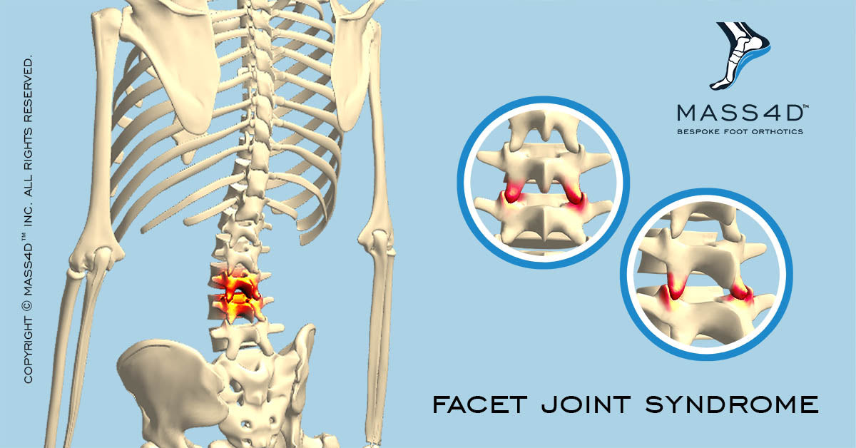 What is Facet Joint Syndrome? - MASS4D® Insoles and Foot Orthotics