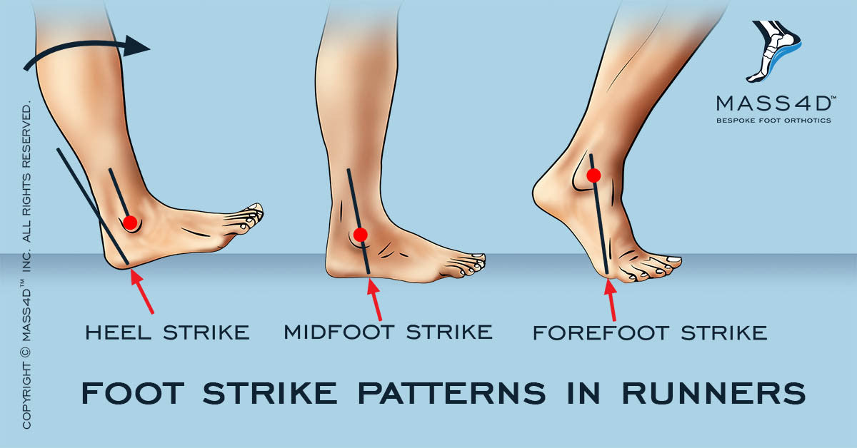 Foot Strike Patterns in Runners
