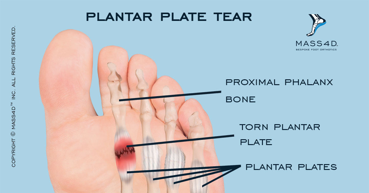 The Causes Of Plantar Plate Injuries - MASS4D® Insoles and Foot ...
