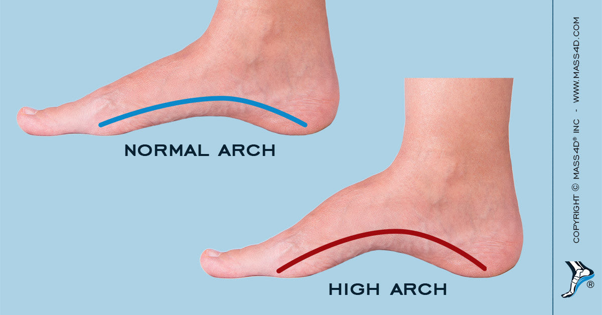 Insoles for High-Arches