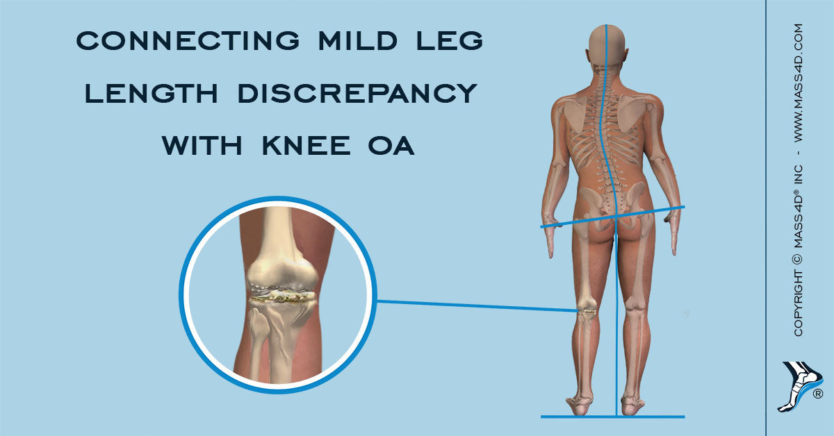 Connecting Mild Leg Length Discrepancy with Knee OA