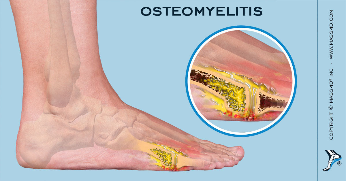 A Closer Look At Osteomyelitis