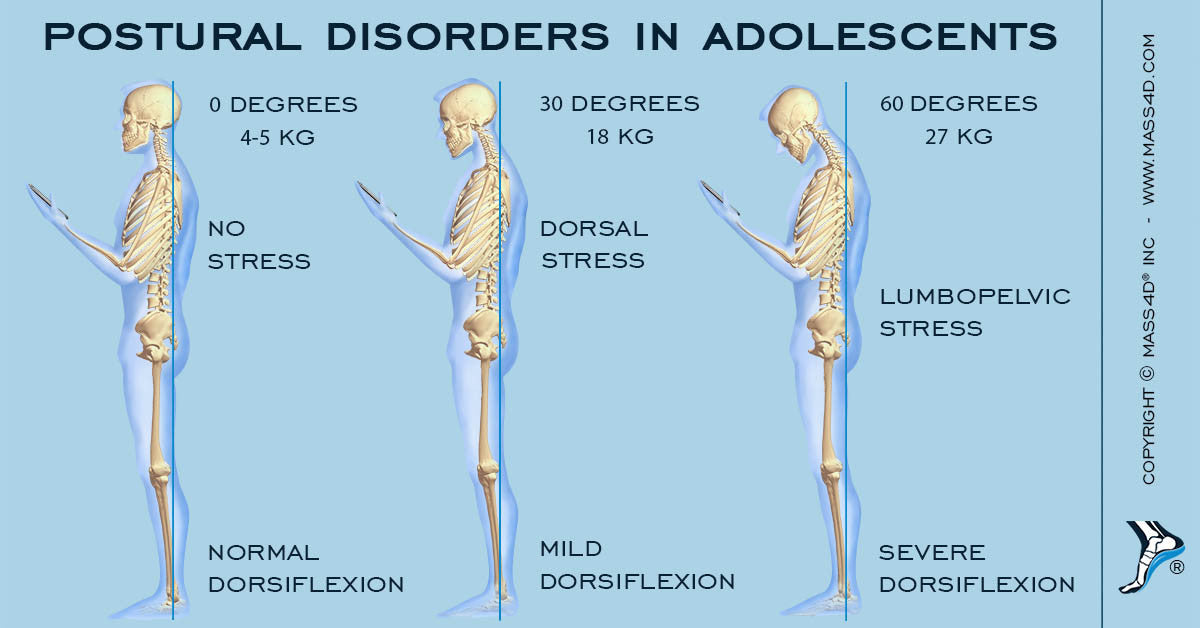 Postural Disorders in Adolescents