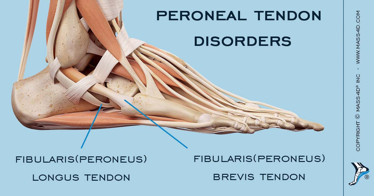 What Are Peroneal Tendon Disorders? - MASS4D® Insoles and Foot Orthotics