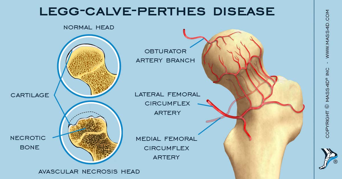Legg-Calvé-Perthes' Disease