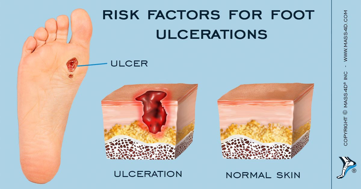 Risk Factors for Foot Ulcerations