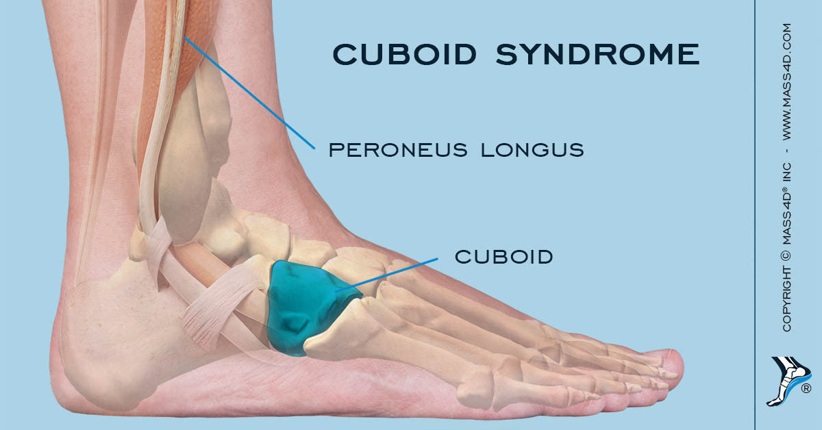 Cuboid Syndrome