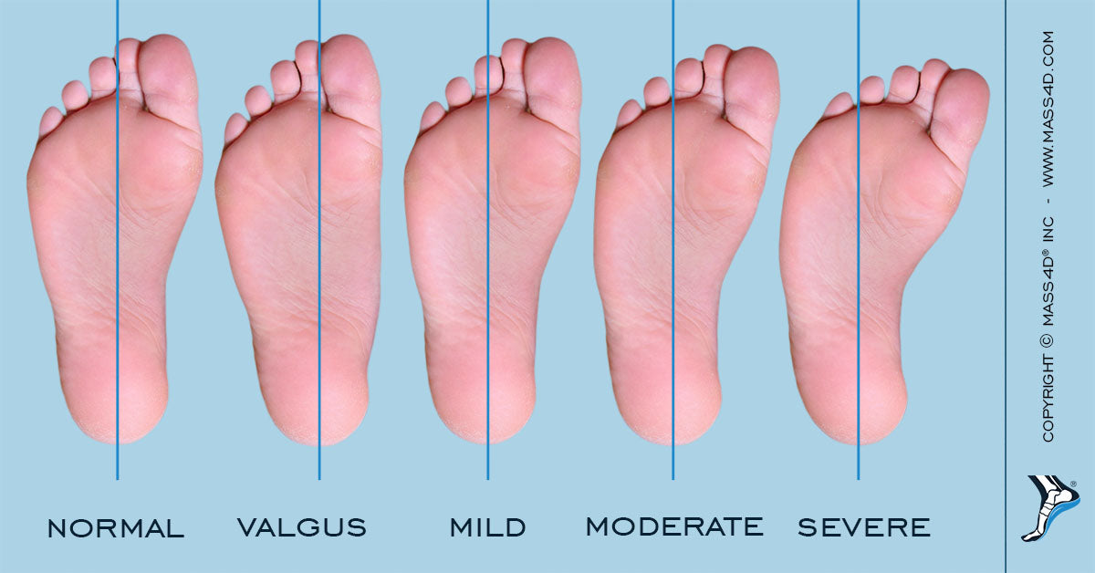 Congenital Foot Abnormalities