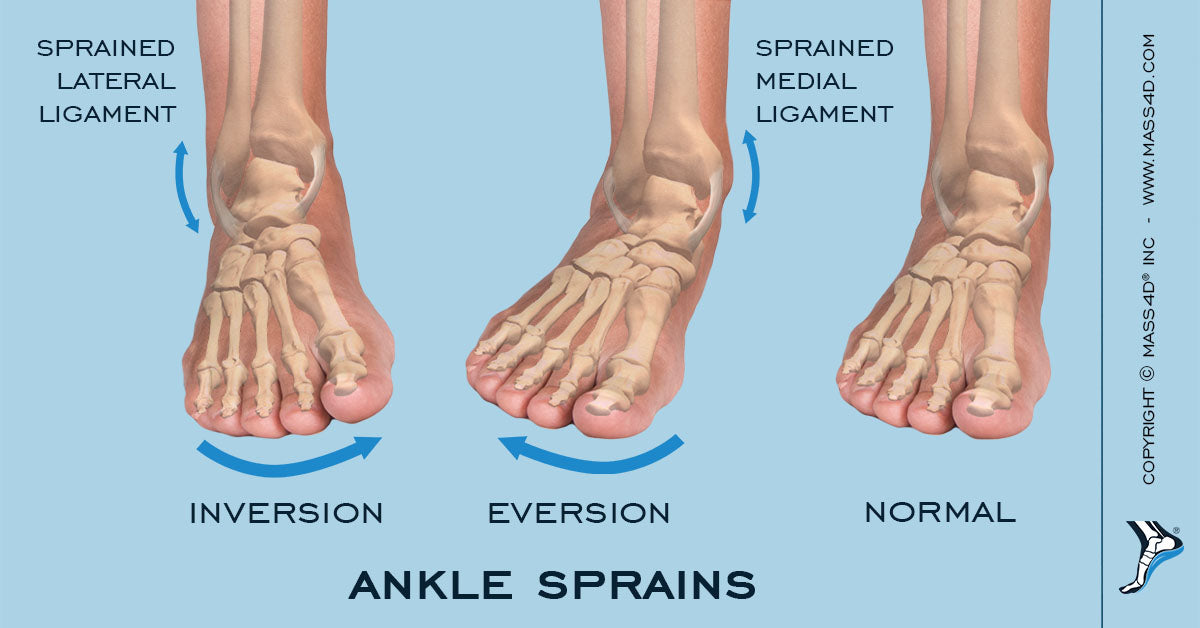 Acute and Recurrent Ankle Sprains