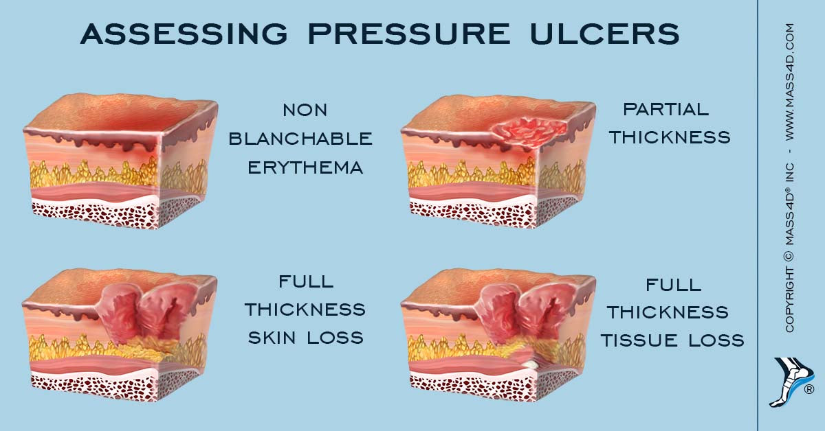 Assessing Pressure Ulcers