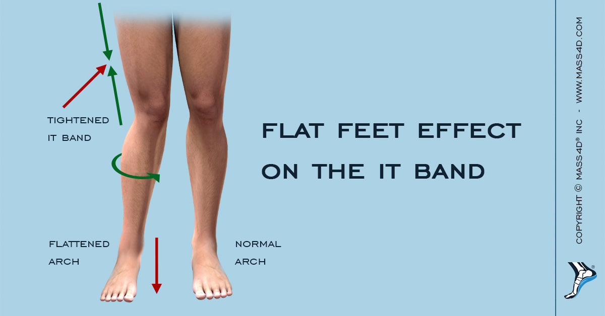 Do Flat Feet Affect the IT Band?
