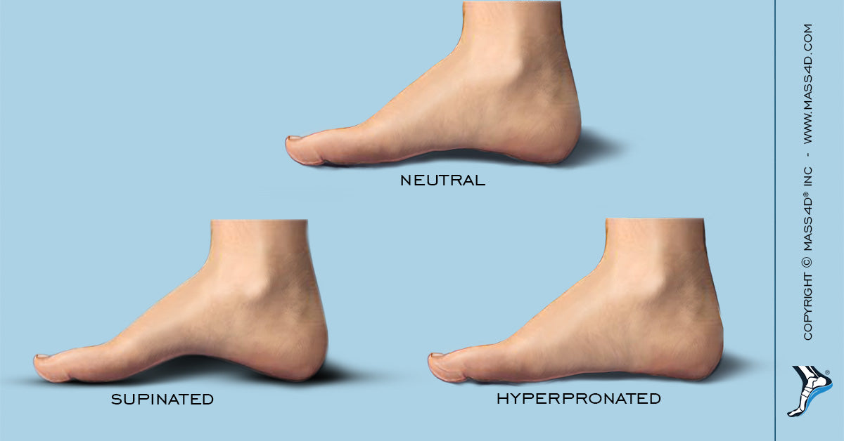 Types of Foot Posture