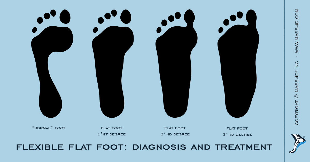 Flexible Flatfoot