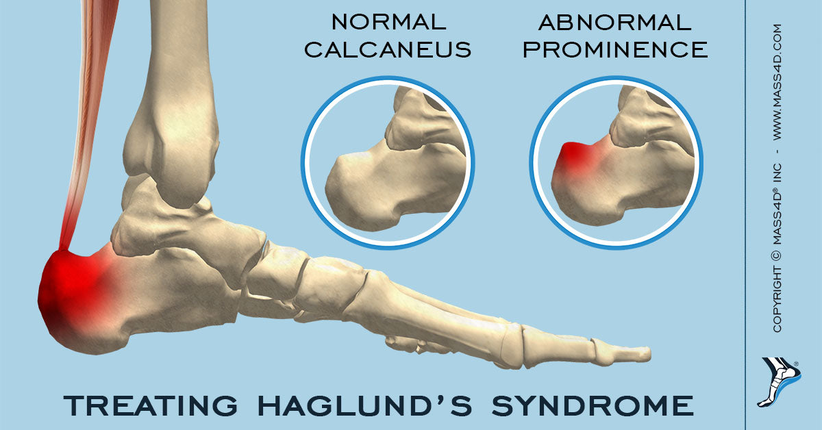 Treating Haglund's Syndrome