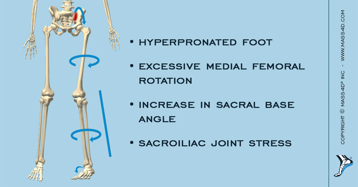 The Biomechanical Implications of Sacroiliac Joint Dysfunction