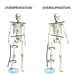 Effects of Overpronation and Supination