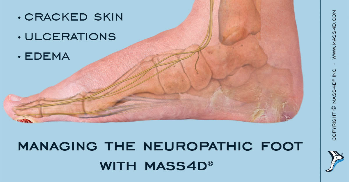 Neuropathic Foot
