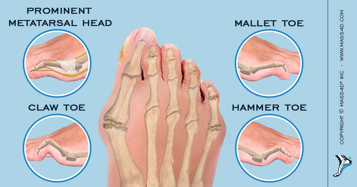 Types of Foot Deformities