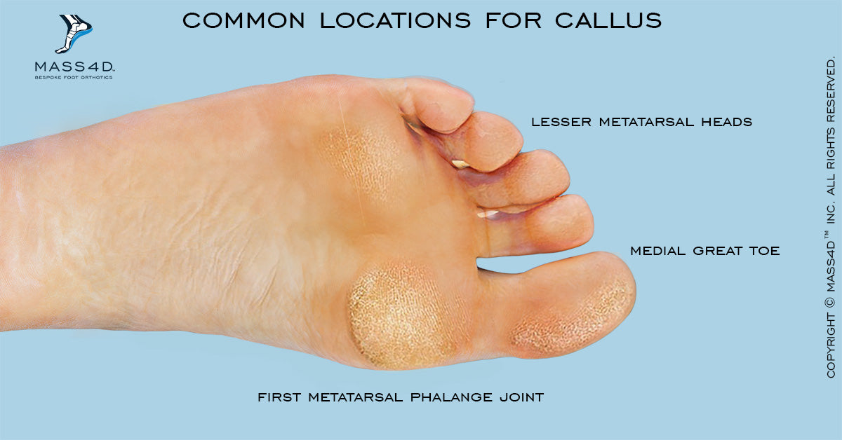 Common Locations for Callus