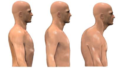 Effect of Over Pronation on Body Posture - 2