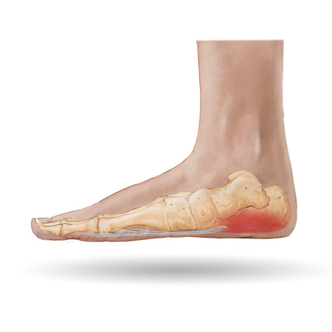 Plantar Fasciitis: A Common Source of Foot Pain