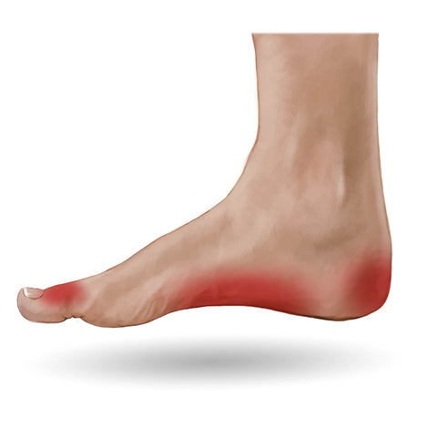 3 Common Areas Of Foot Pain Mass4d Insoles Mass4d Foot Orthotics