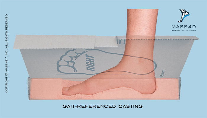 Gait-Referenced Casting