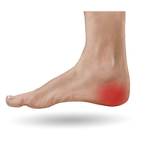 Image result for heel pain