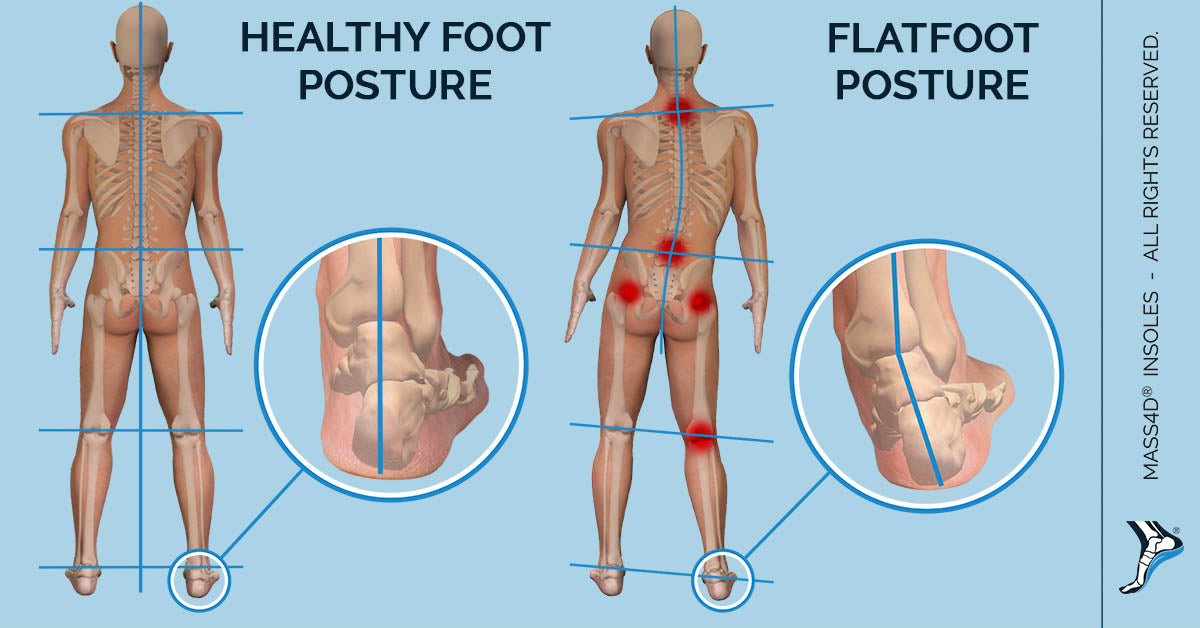 Flat Feet Affect Body Posture