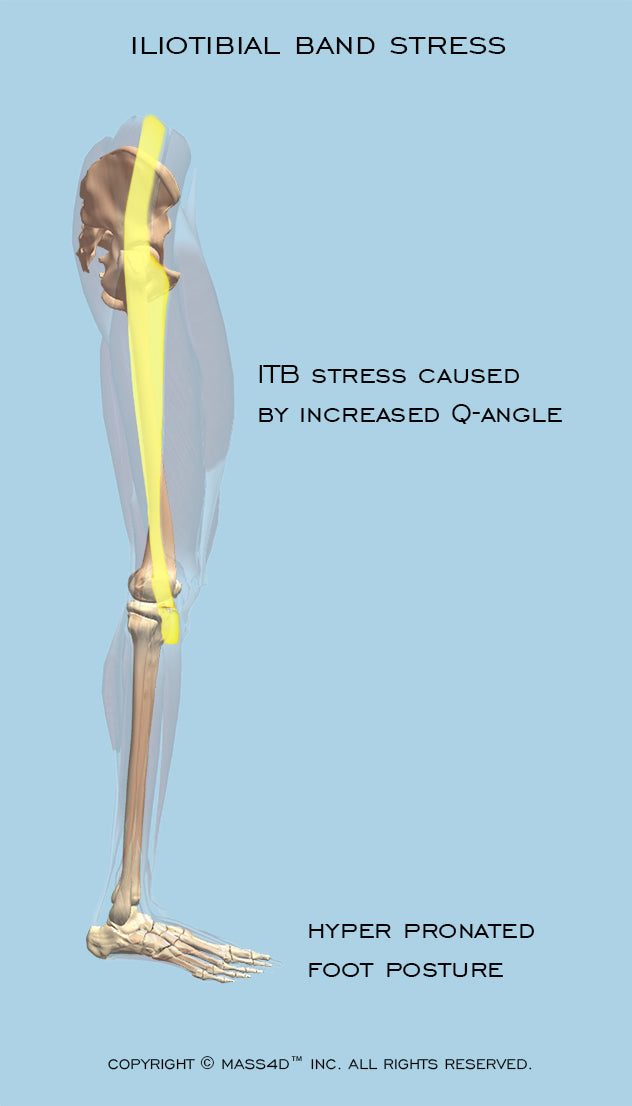 ITB Iliotibial Band Stress Caused by Increased Q - Angle and Hyper Pronated Foot Posture