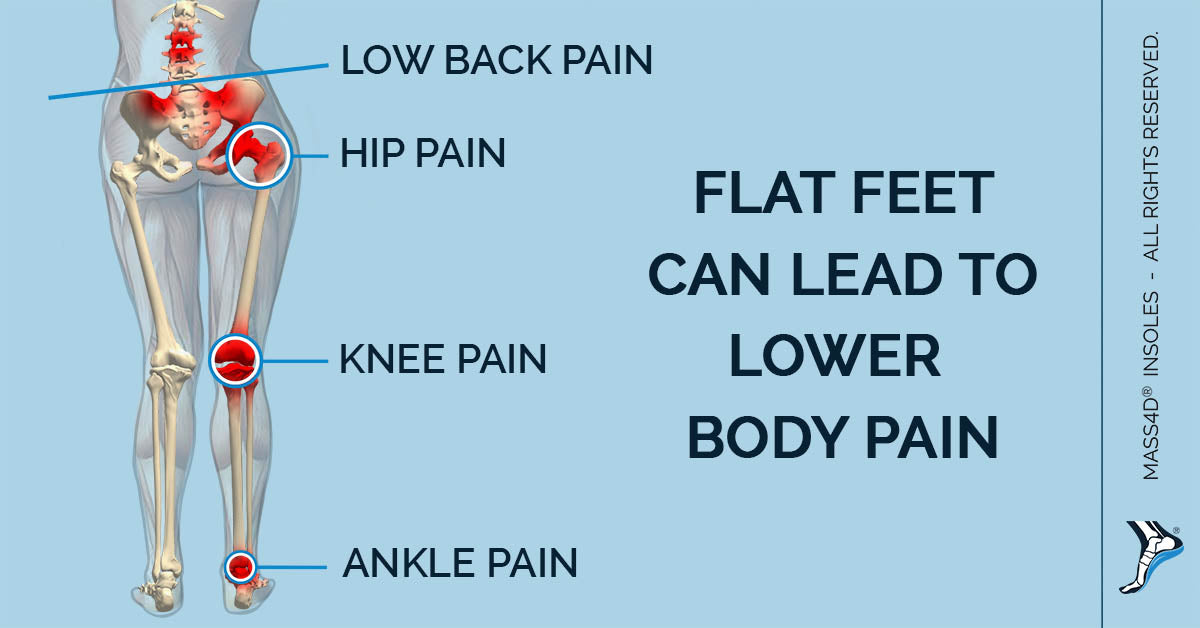 Flat Feet Can Lead To Lower Body Pain