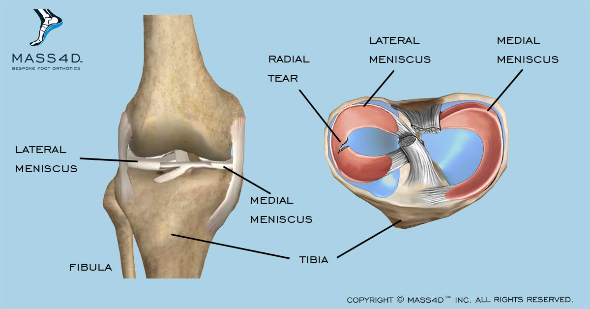 Meniscus Tears In Athletic Performance