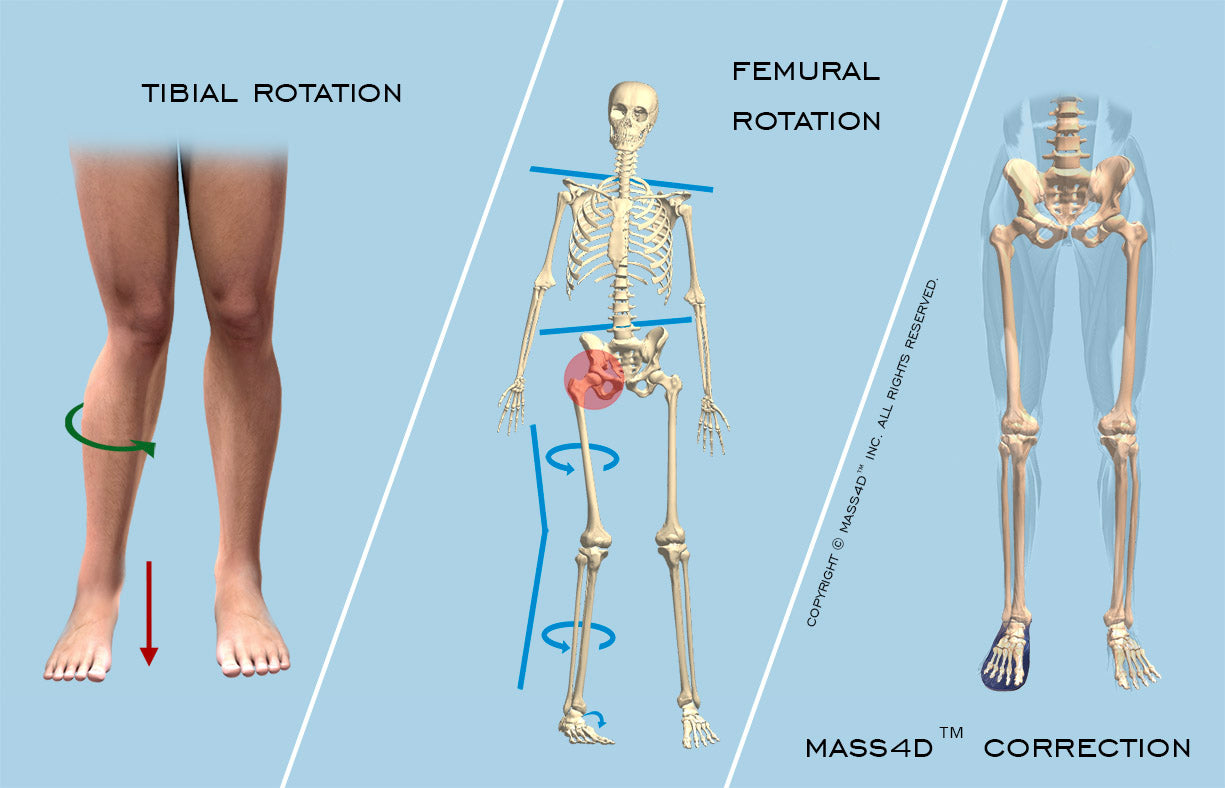 internal tibial rotation corrected with MASS4D®