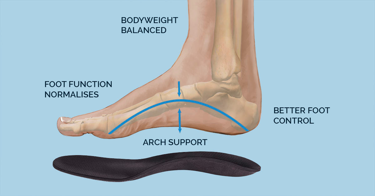 Orthotic Benefits
