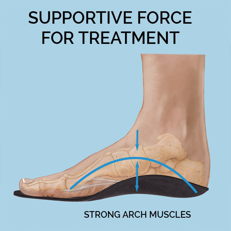Orthotic Support For Strong Arches