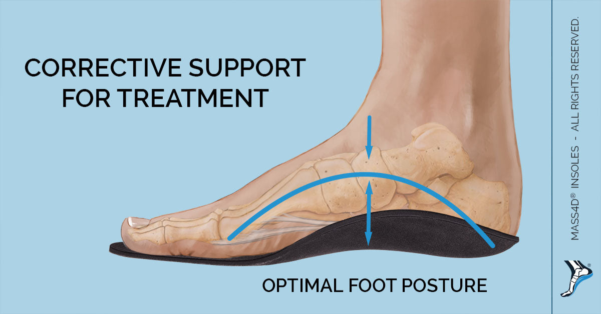 Orthotic Foot Pain
