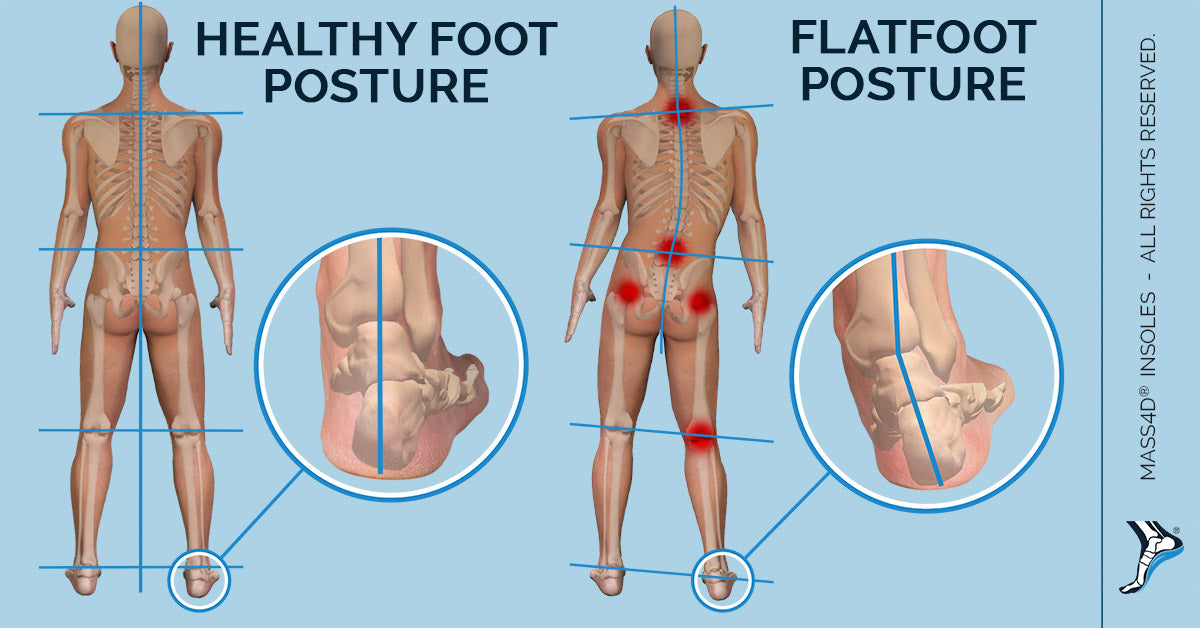 Body Posture With Healthy Foot Posture And Flatfoot Posture