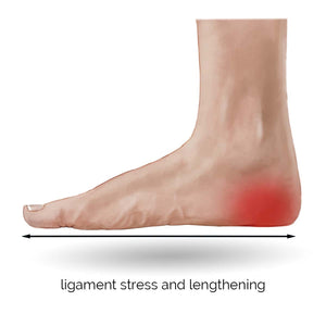 Foot Problems in Pregnancy