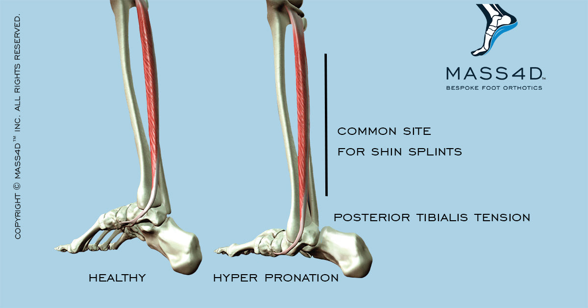 Healthy and Hyperpronated Foot