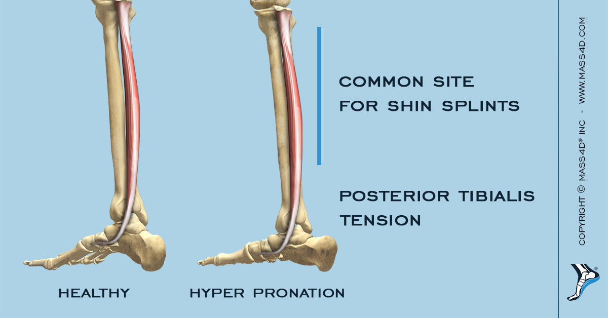 The Connection between Anterior Tibialis Tendinitis and Pronation
