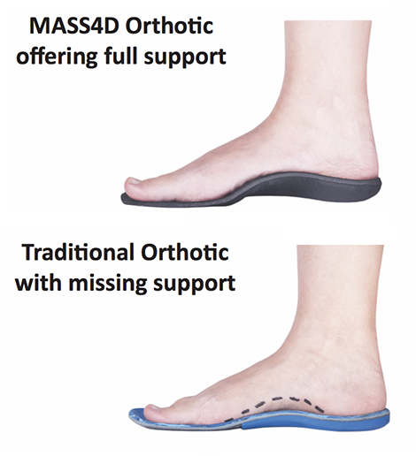 MASS4D-Orthotics-vs-Traditional-Orthotics
