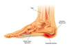 The 6 crucial elements for beating Plantar Fasciitis