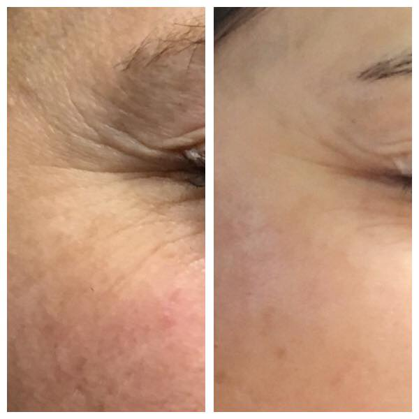 CRL Microneedling - Eye area
