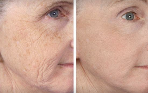 Check Out These Great Before-And-After Microneedling Pics via @TheSlyFoxJasper!