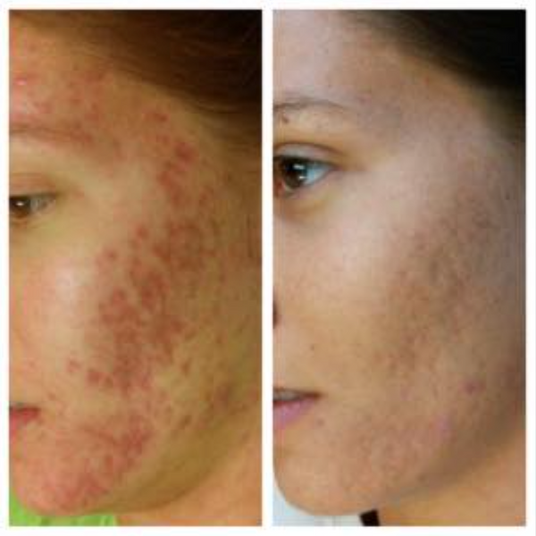 InnoPen Microneedling - Before & After Pictures via @UniqueSkinLtd