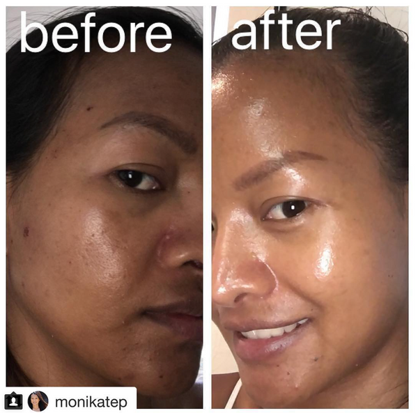 Microneedling Is Used To Treat Many Skin Conditions Safely And Effectively via @MonikaTep