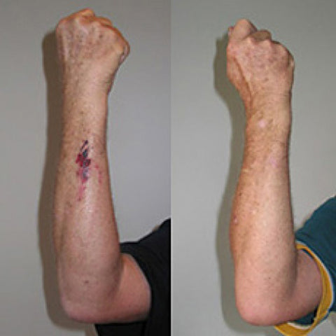 Arm wound before and after